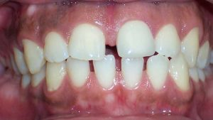 Before Teeth Treatment