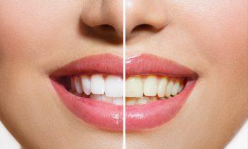 Teeth Whitening Treatment Mentone